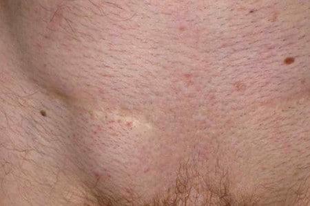 Опухлость в области паха