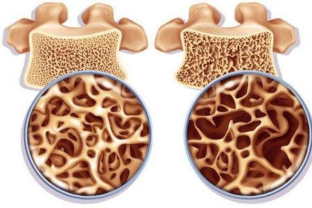 Нормальная кость и остеопороз