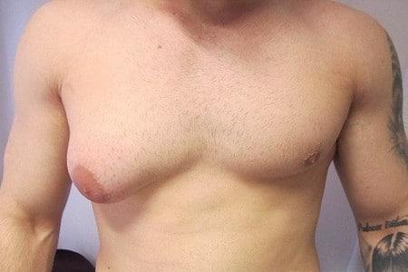 Мужчина с увеличенными грудными железами