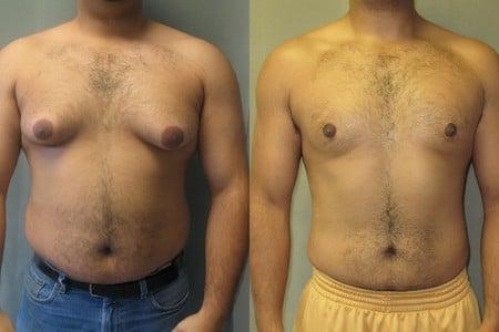 Мужчина до и после липосакции