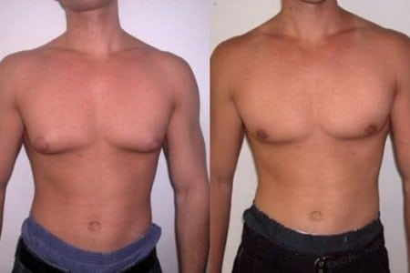 Увеличенная грудь у мужчины
