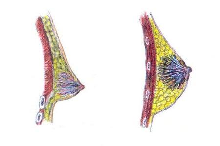 Нормальная грудь и гинекомастия