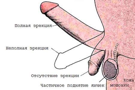 схема эрекции