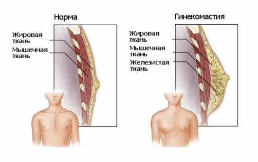 рисунки груди в норме и с гинекомастией